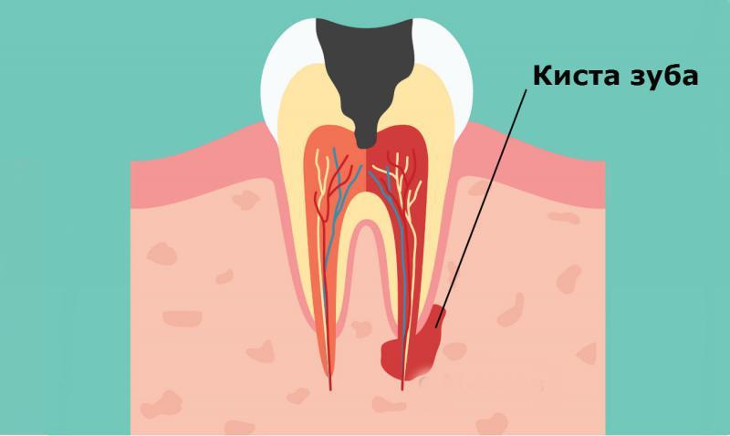 Что такое лечение кисты зуба