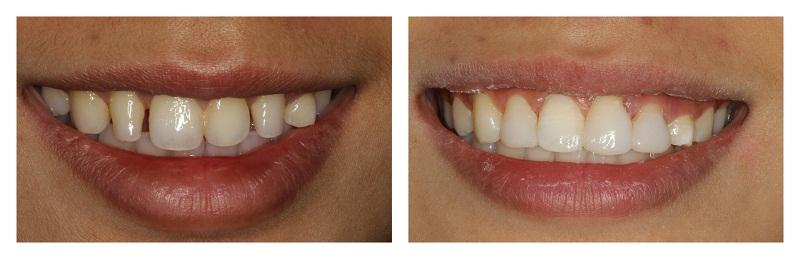 Фото нашей работы: до и после эстетической реставрации зубов