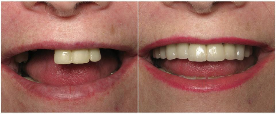 Пример нашей работы по имплантации зубов