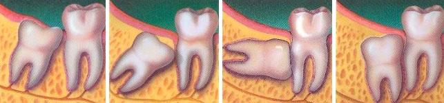 Когда следует удалять восьмой зуб