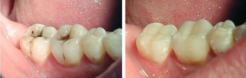 Фото лечения кариеса До и После