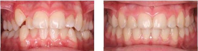 Зубы до и после установки металлических брекетов в Смайл Лайк