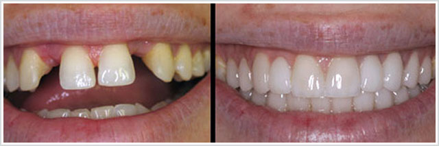 Зубы до и после установки металлокерамики