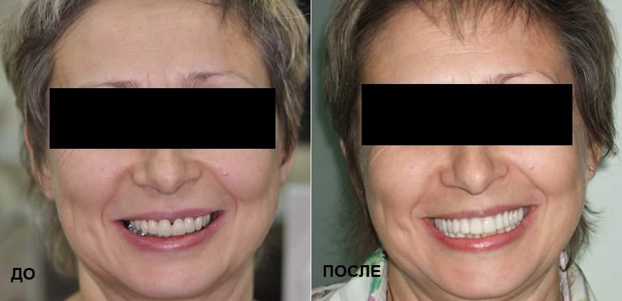 Зубы до и после имплантации