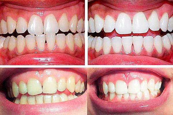 Результат отбеливания зубов в нашей стоматологии