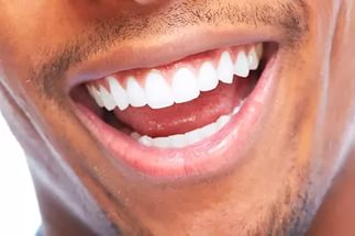Пример отбеливания зубов