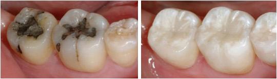 Пломбирование дальних зубов. Фотографии до и после установки пломбы