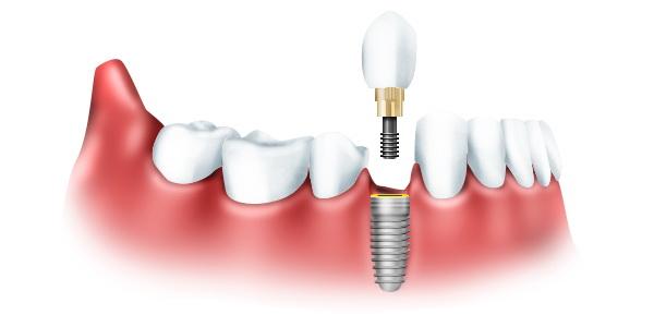 Типы протезирования зубов