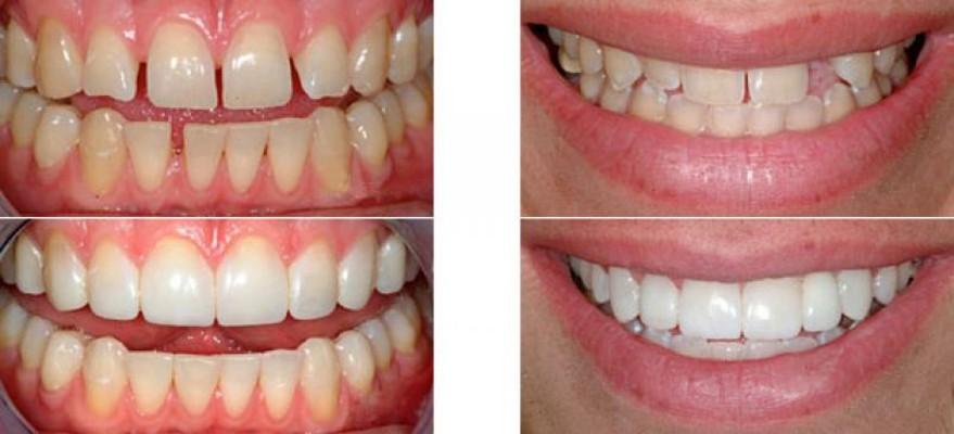Результат нашей работы по реставрации зубов