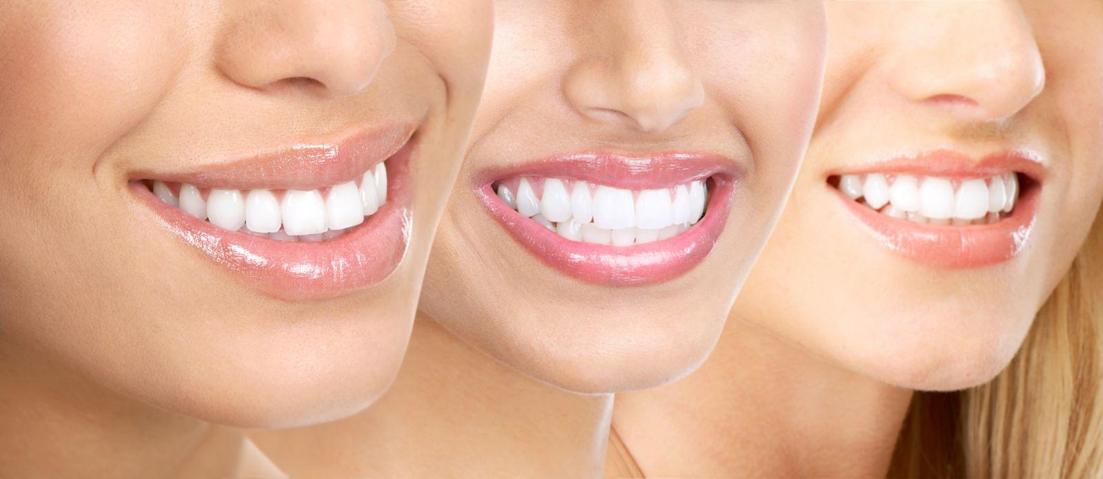 Пример реставрации передних зубов