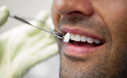 Подбор цвета для реставрации зуба