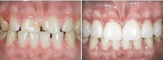 Пример нашей работы по реставрации фронтальных зубов