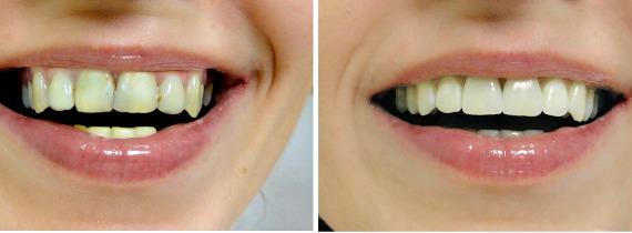 Фото До и После реставрации фронтальных зубов
