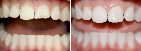 Реставрация фронтальных зубов - фото до и после