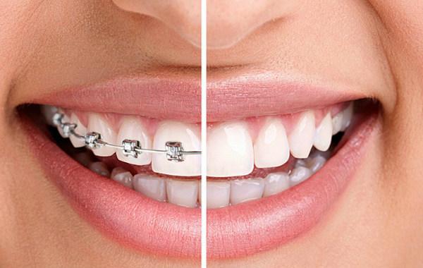 Зубы до брекетов и после