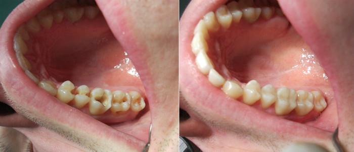 Пример нашей работы по восстановление жевательных зубов