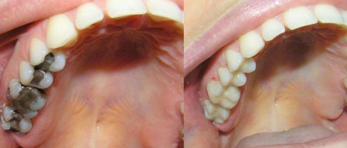 Наши работы по восстановлению четырех жевательных зубов