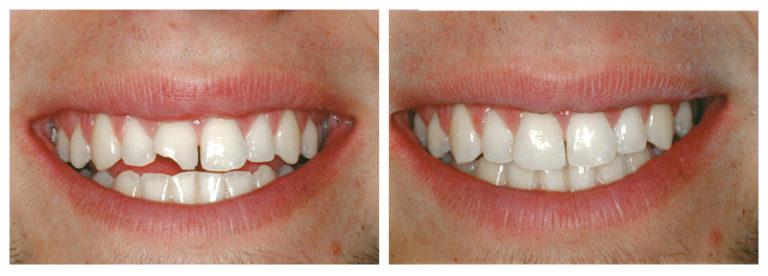Фото зубов до и после восстановления