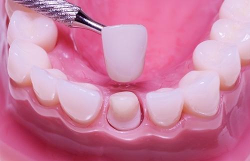 Зубные коронки в стоматологии Smile Like