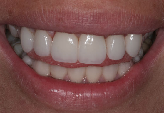 Красивые зубы с коронками